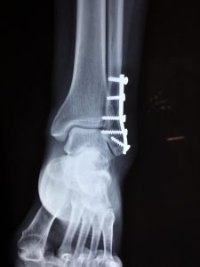 an ancle fracture